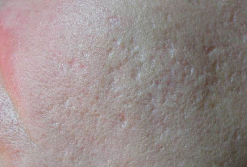 cicatrice_acne_02